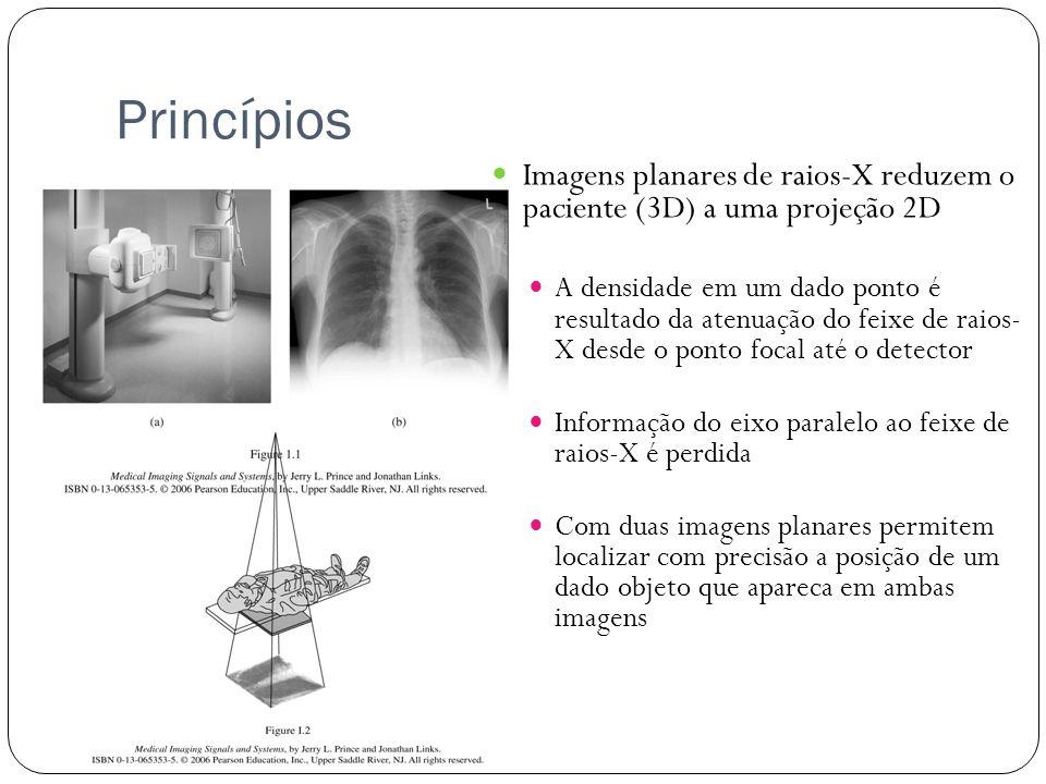 Princípios Imagens planares de raios-X reduzem o paciente (3D) a uma projeção 2D A densidade em um dado ponto é resultado da atenuação do feixe de rai