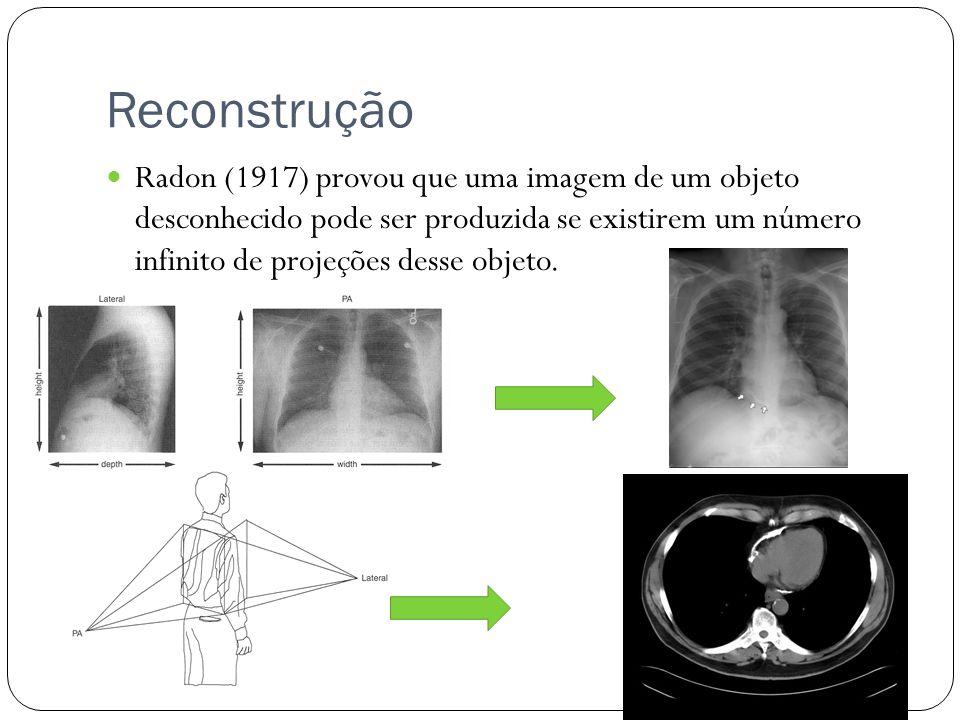 Reconstrução Radon (1917) provou que uma imagem de um objeto desconhecido pode ser produzida se existirem um número infinito de projeções desse objeto