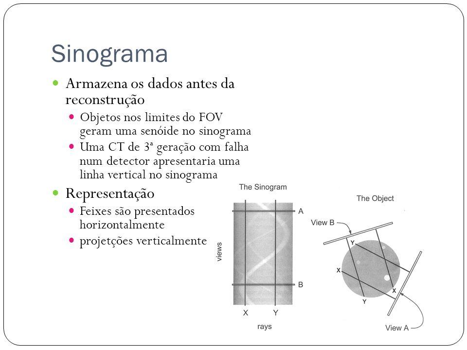 Sinograma Armazena os dados antes da reconstrução Objetos nos limites do FOV geram uma senóide no sinograma Uma CT de 3ª geração com falha num detecto