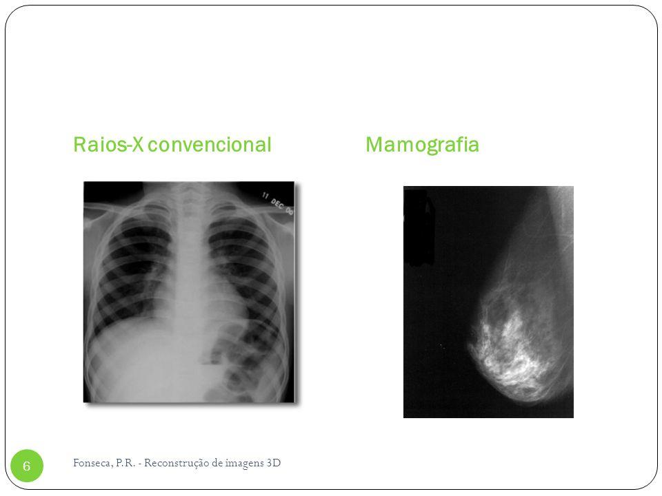 Princípios Imagens planares de raios-X reduzem o paciente (3D) a uma projeção 2D A densidade em um dado ponto é resultado da atenuação do feixe de raios- X desde o ponto focal até o detector Informação do eixo paralelo ao feixe de raios-X é perdida Com duas imagens planares permitem localizar com precisão a posição de um dado objeto que apareca em ambas imagens
