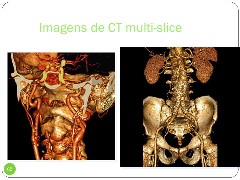 Imagens de CT multi-slice 65