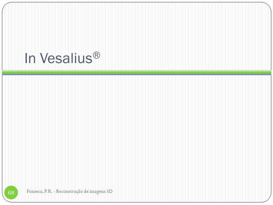 In Vesalius ® 68 Fonseca, P.R. - Reconstrução de imagens 3D