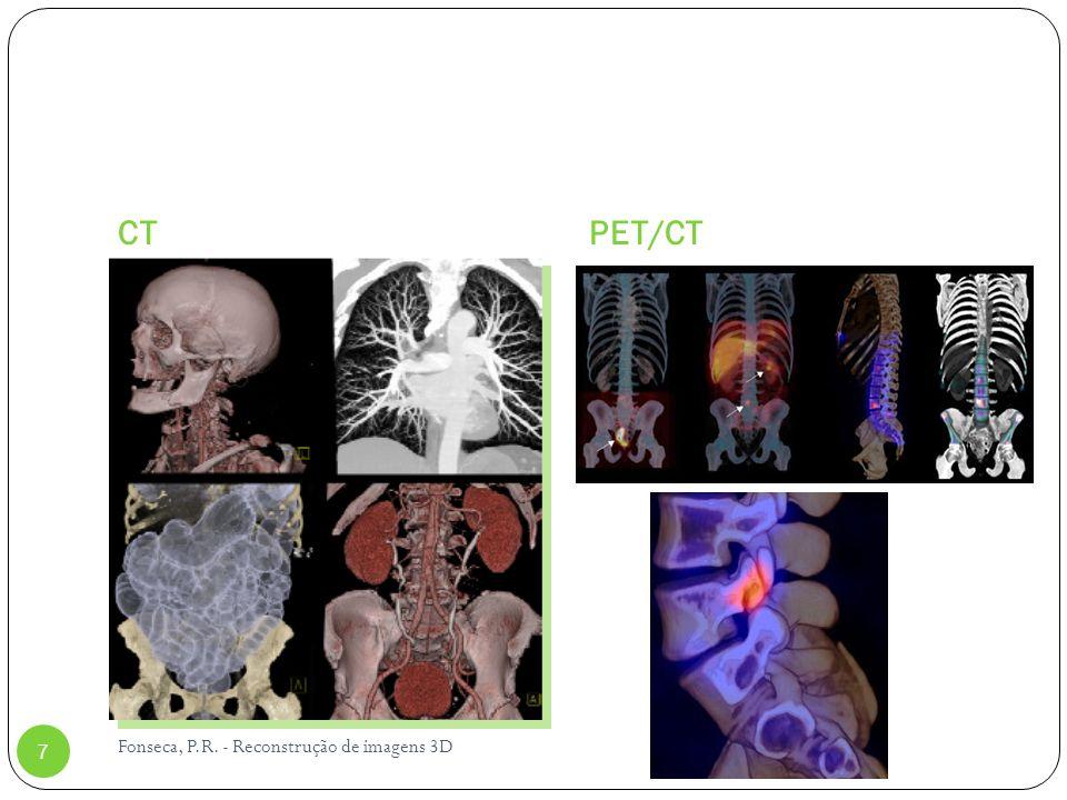 Aplicações da TF para a Física Médica 28 Filtro passa-baixa Diminuição da freqüência de corte