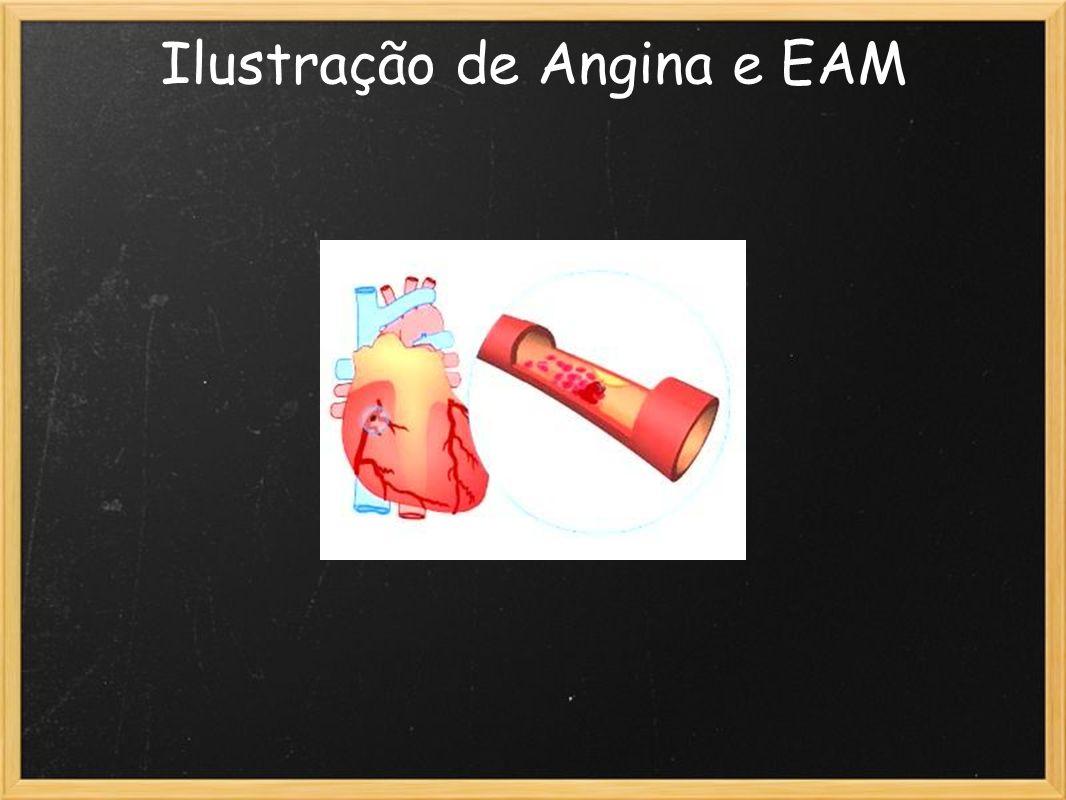 Ilustração de Angina e EAM