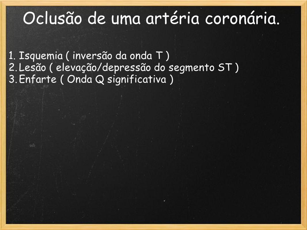 Oclusão de uma artéria coronária. 1.Isquemia ( inversão da onda T ) 2.Lesão ( elevação/depressão do segmento ST ) 3.Enfarte ( Onda Q significativa )