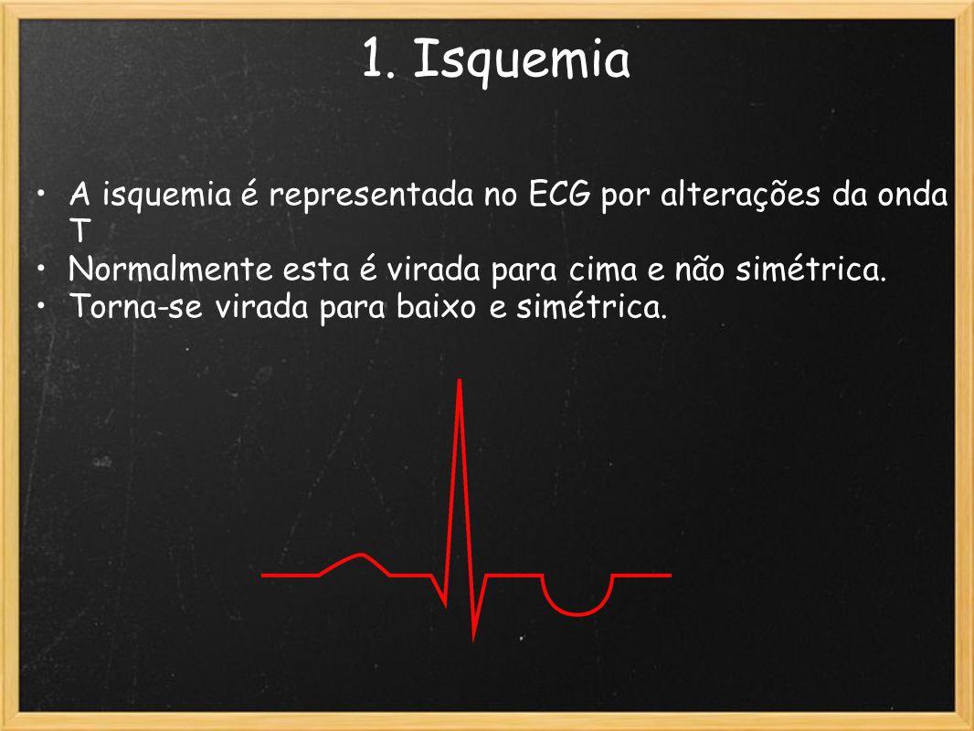 1. Isquemia A isquemia é representada no ECG por alterações da onda T Normalmente esta é virada para cima e não simétrica. Torna-se virada para baixo