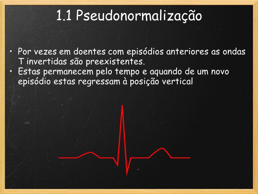 1.1 Pseudonormalização Por vezes em doentes com episódios anteriores as ondas T invertidas são preexistentes. Estas permanecem pelo tempo e aquando de