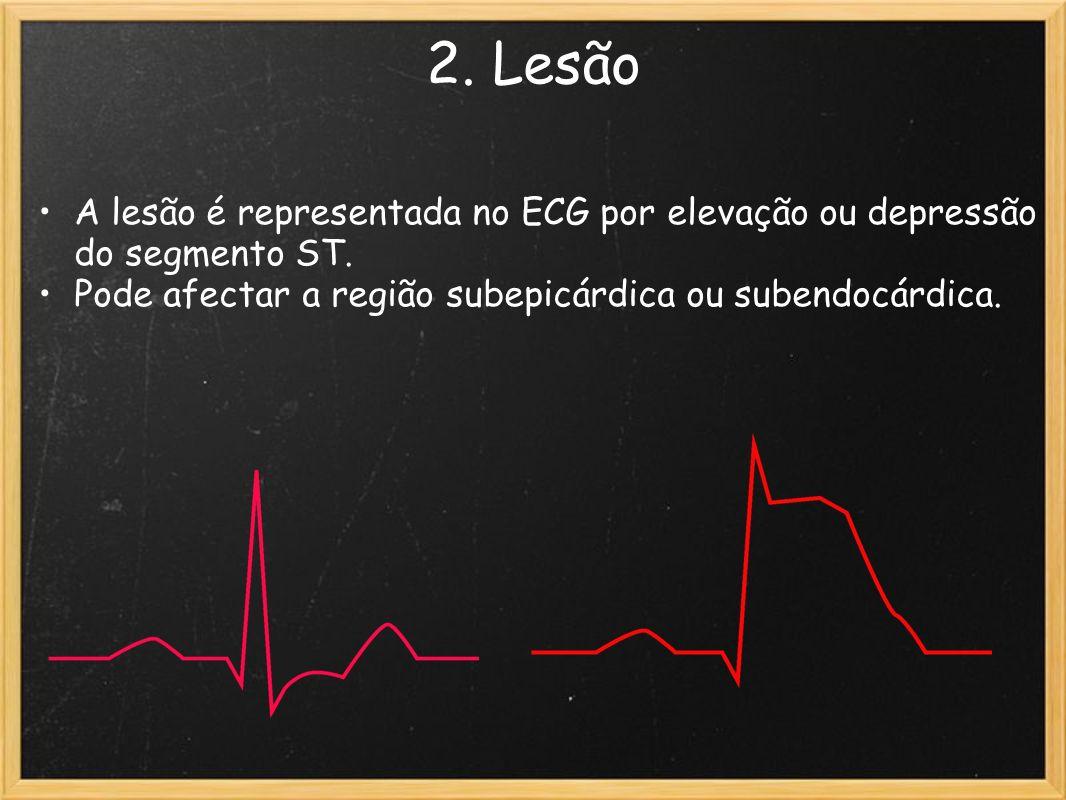 2. Lesão A lesão é representada no ECG por elevação ou depressão do segmento ST. Pode afectar a região subepicárdica ou subendocárdica.