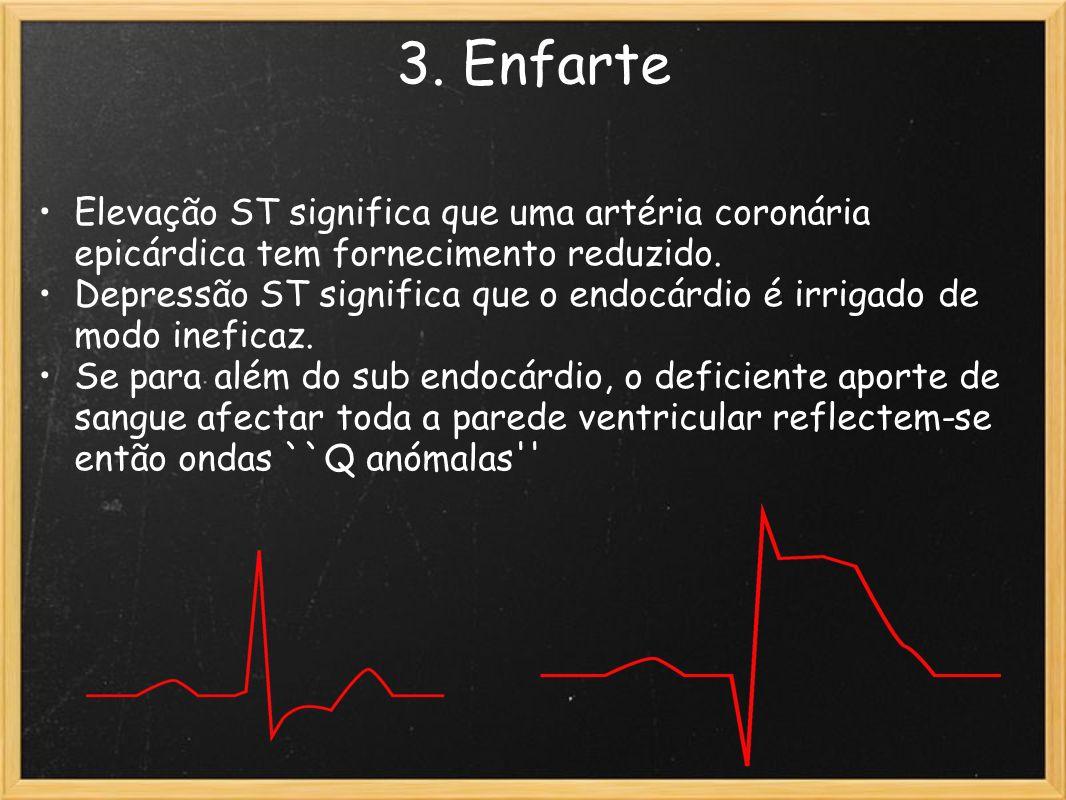3. Enfarte Elevação ST significa que uma artéria coronária epicárdica tem fornecimento reduzido. Depressão ST significa que o endocárdio é irrigado de