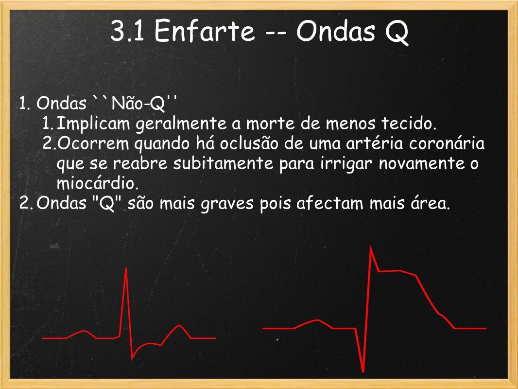3.1 Enfarte -- Ondas Q 1.Ondas ``Não-Q'' 1.Implicam geralmente a morte de menos tecido. 2.Ocorrem quando há oclusão de uma artéria coronária que se re