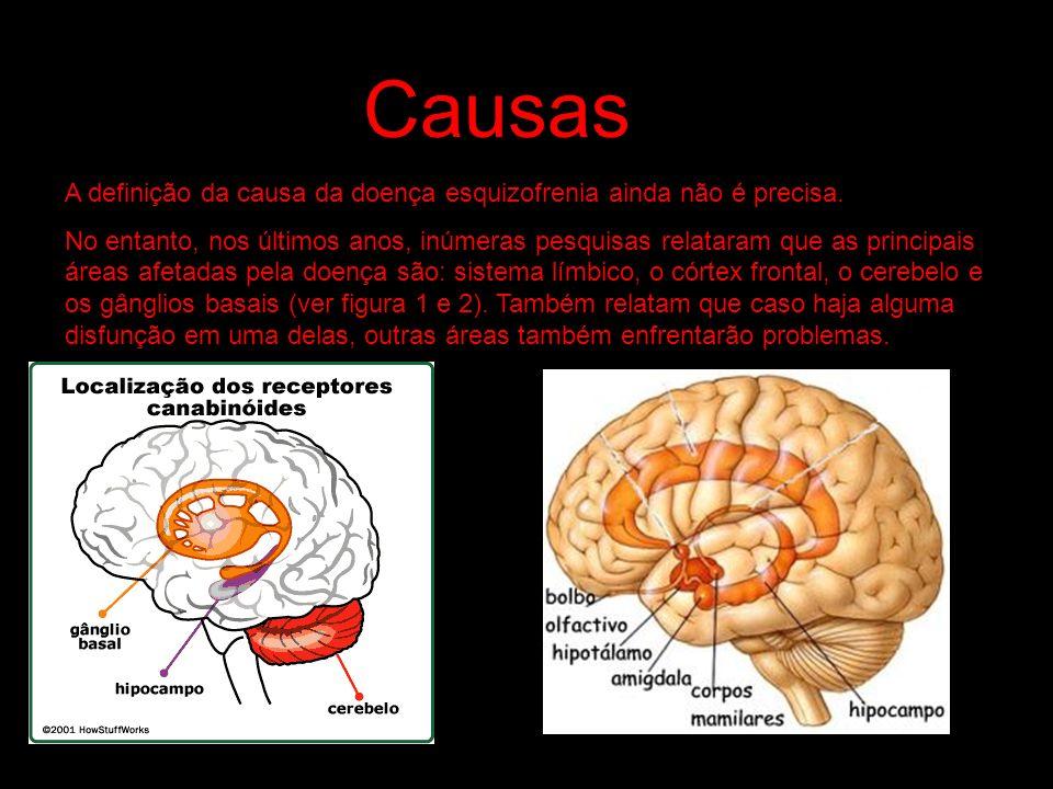 Causas A definição da causa da doença esquizofrenia ainda não é precisa. No entanto, nos últimos anos, inúmeras pesquisas relataram que as principais