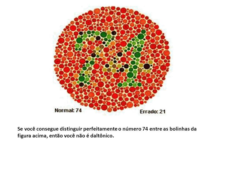 Hemofilia SexoGenótipo Fenótipo Masculino X H Y homem normal X h Y homem hemofílico Feminino X H X H mulher normal X H X h mulher normal portadora X h X h mulher hemofílica