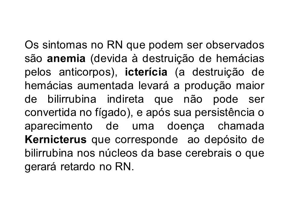 Os sintomas no RN que podem ser observados são anemia (devida à destruição de hemácias pelos anticorpos), icterícia (a destruição de hemácias aumentad