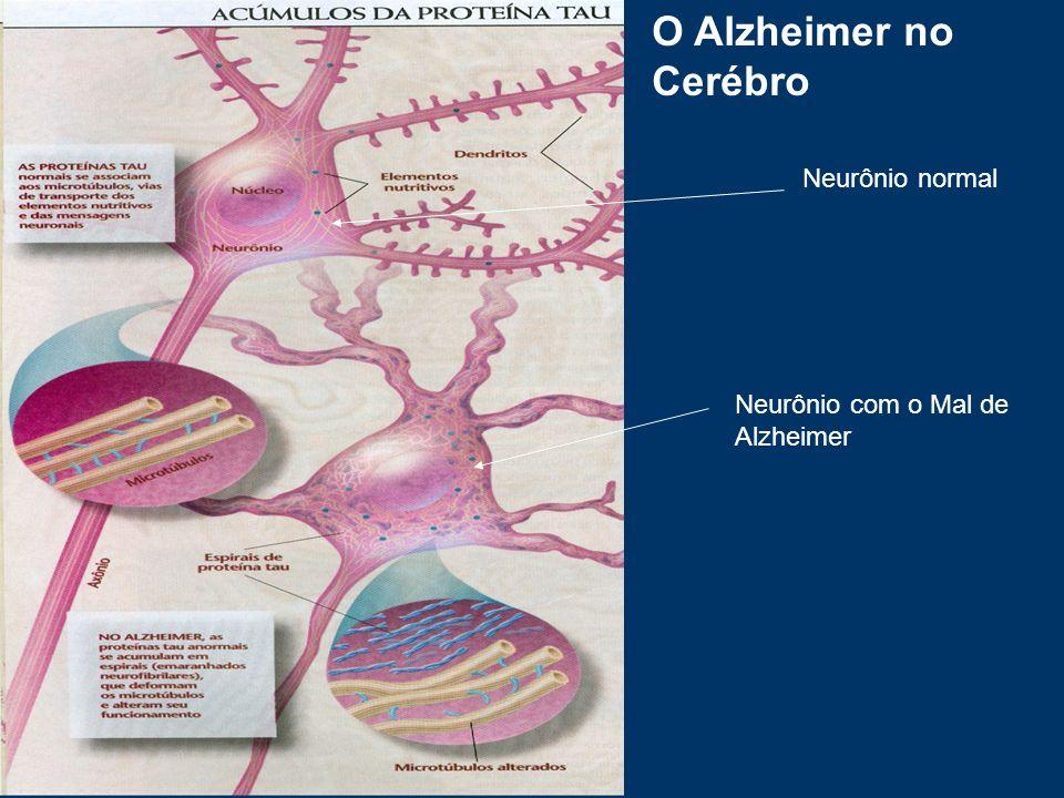 Neurônio normal Neurônio com o Mal de Alzheimer O Alzheimer no Cerébro