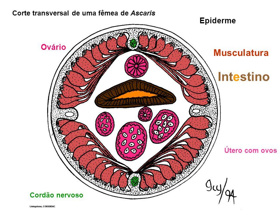 Epiderme Musculatura Corte transversal de uma fêmea de Ascaris Útero com ovos Intestino Cordão nervoso Ovário