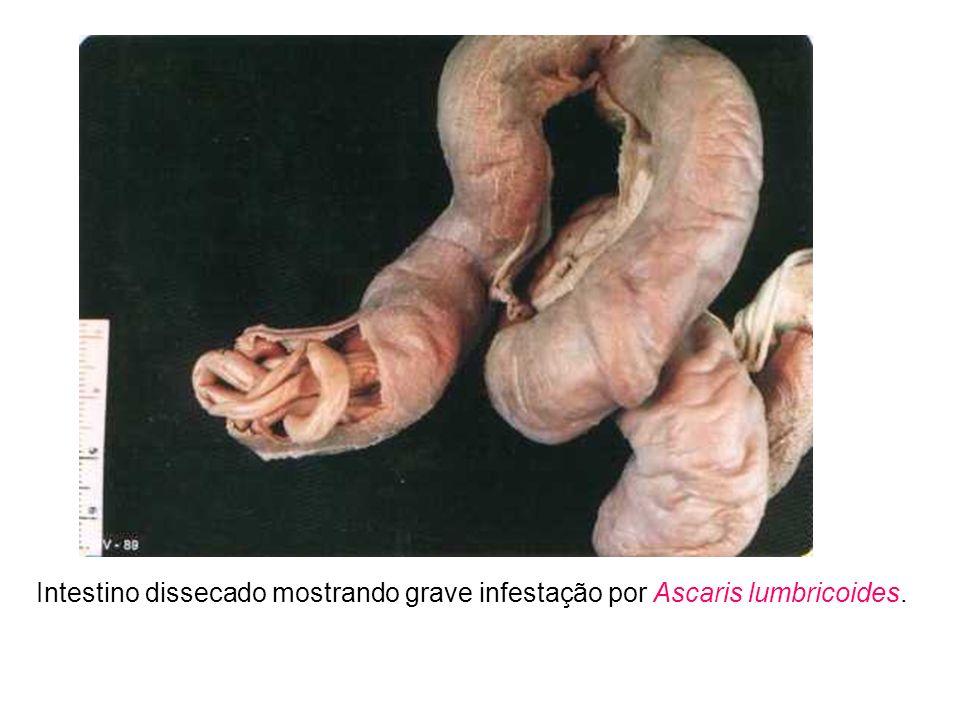 Intestino dissecado mostrando grave infestação por Ascaris lumbricoides.