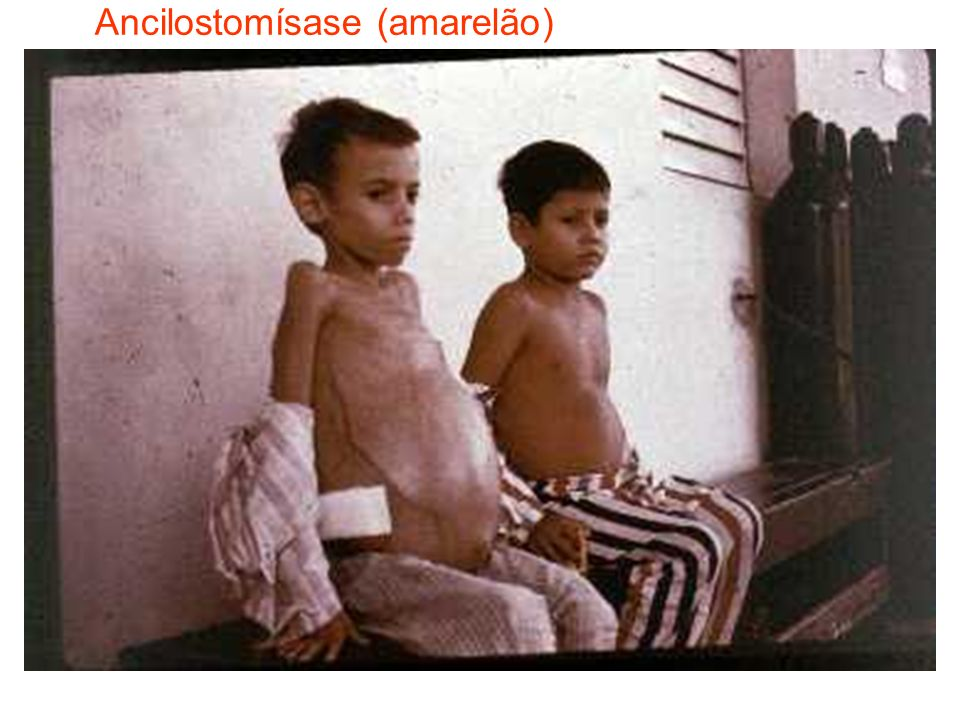 Ancilostomísase (amarelão)