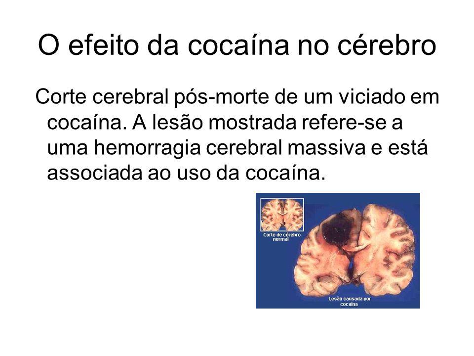 O efeito da cocaína no cérebro Corte cerebral pós-morte de um viciado em cocaína. A lesão mostrada refere-se a uma hemorragia cerebral massiva e está