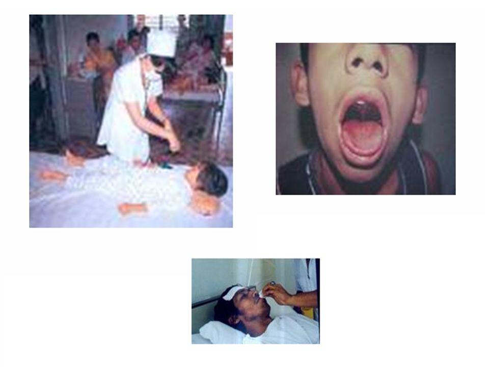 SINTOMAS DA DENGUE CLÁSSICA FebreProstração Dor de cabeça Dor atrás dos olhos Dores musculares generalizadas