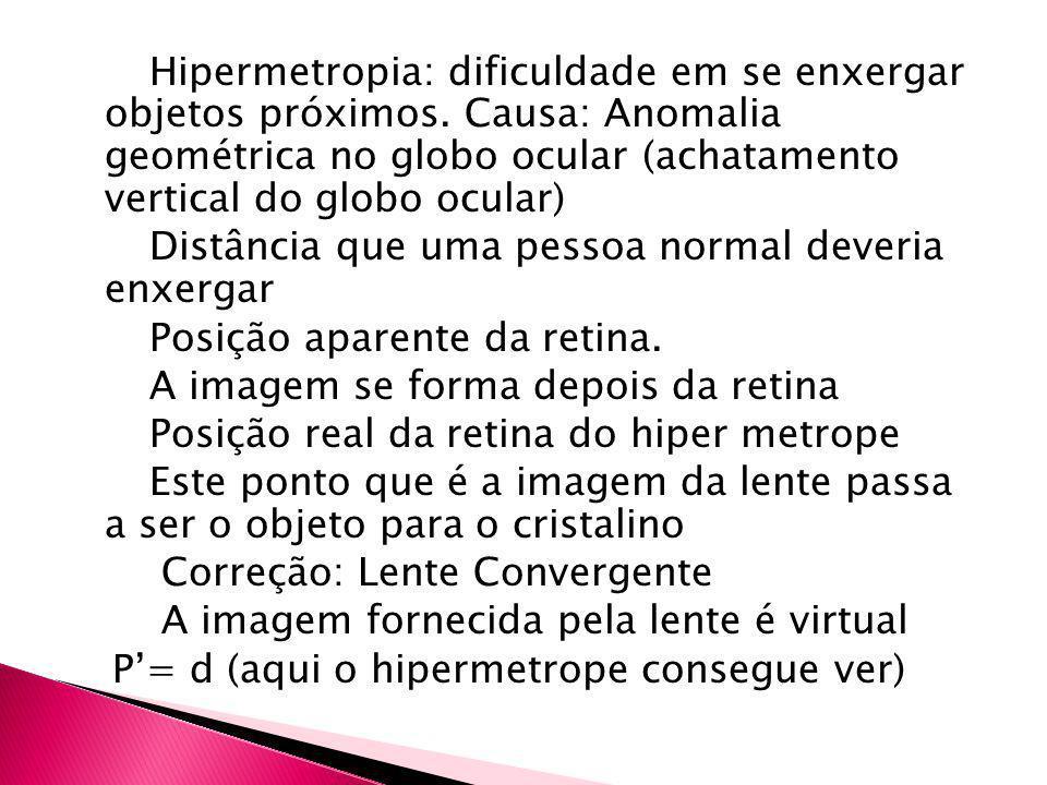 Hipermetropia: dificuldade em se enxergar objetos próximos. Causa: Anomalia geométrica no globo ocular (achatamento vertical do globo ocular) Distânci
