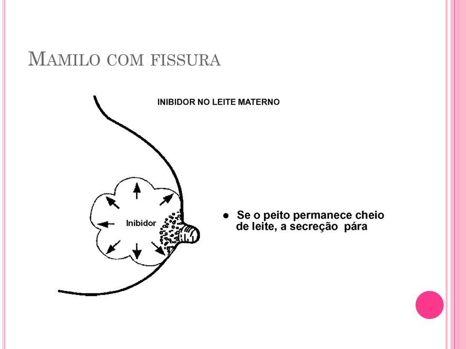 M AMILO COM FISSURA