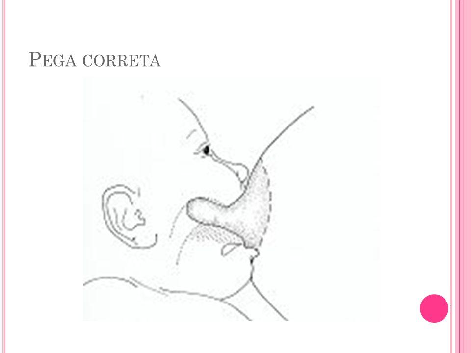 P EGA CORRETA