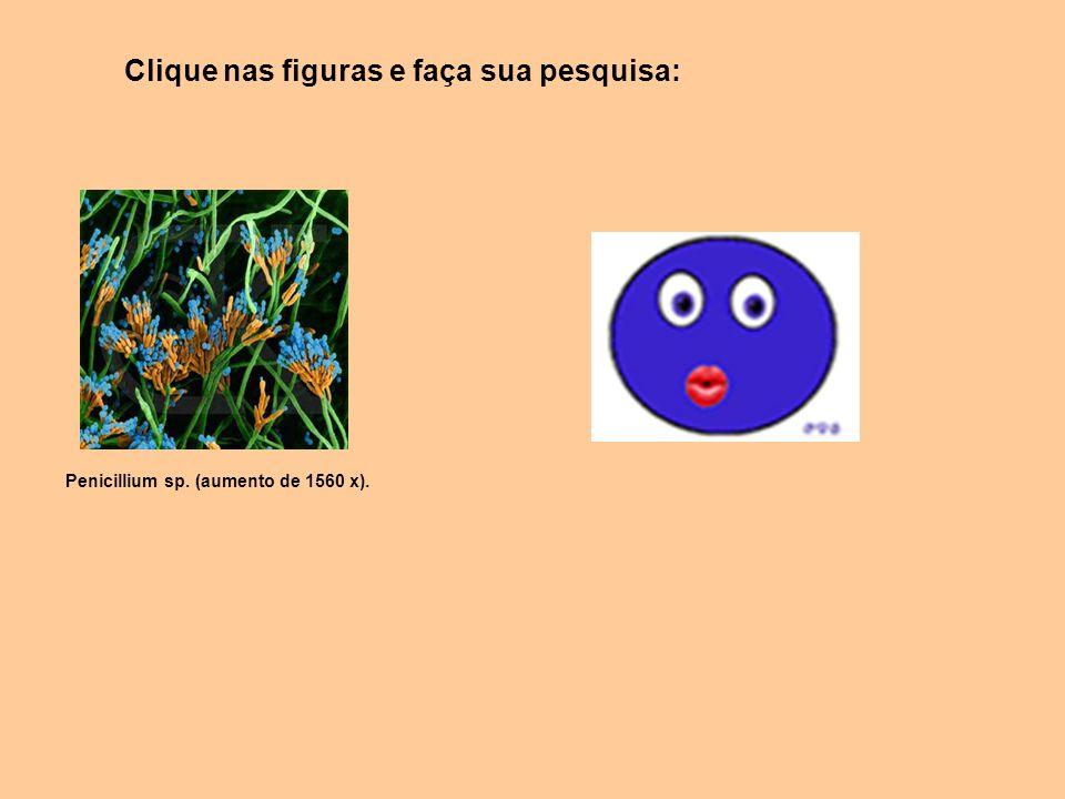 Penicillium sp. (aumento de 1560 x). Clique nas figuras e faça sua pesquisa: