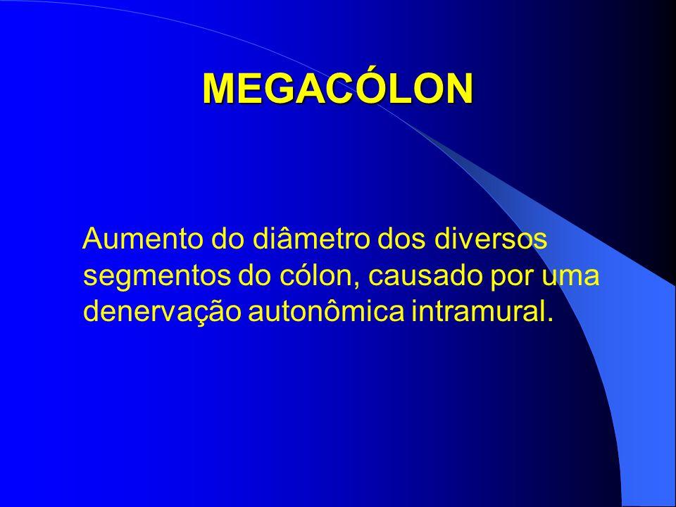 MEGACÓLON Aumento do diâmetro dos diversos segmentos do cólon, causado por uma denervação autonômica intramural.