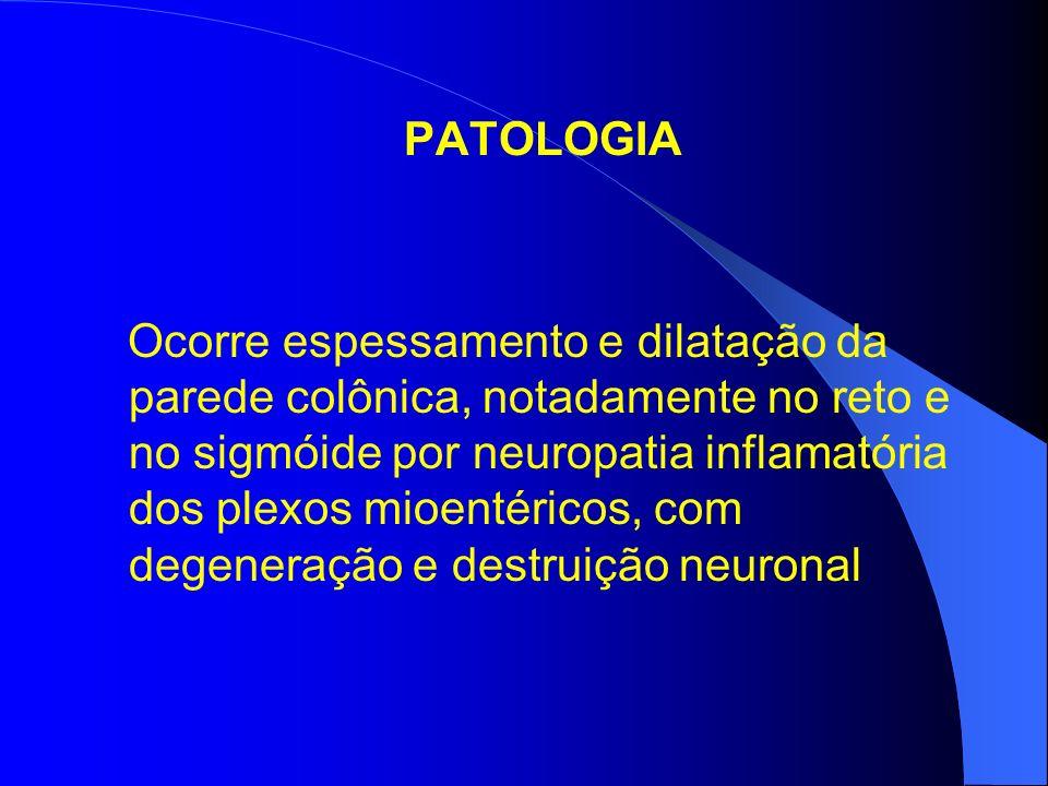 PATOLOGIA Ocorre espessamento e dilatação da parede colônica, notadamente no reto e no sigmóide por neuropatia inflamatória dos plexos mioentéricos, com degeneração e destruição neuronal