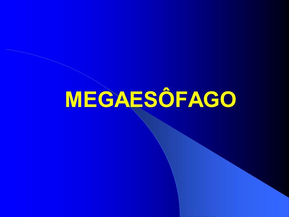 MEGAESÔFAGO Afecção caracterizada por distúrbio motor do esôfago, com falta de peristaltismo e acalásia do esfíncter inferior do esôfago, decorrente da diminuição dos plexos nervosos submucosos e mioentéricos.