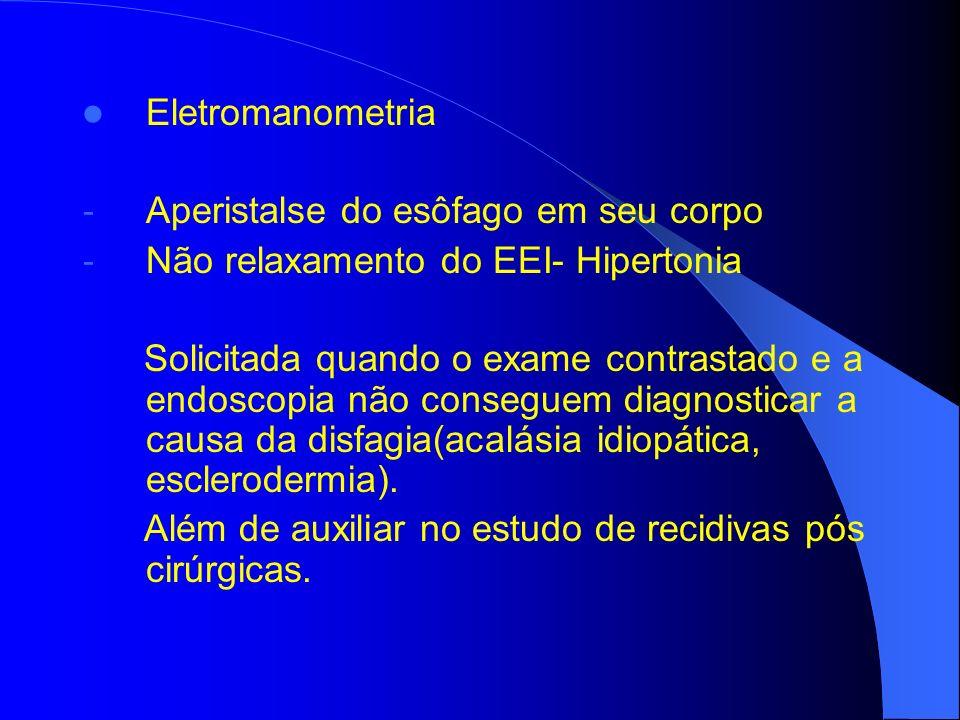 Eletromanometria - Aperistalse do esôfago em seu corpo - Não relaxamento do EEI- Hipertonia Solicitada quando o exame contrastado e a endoscopia não c
