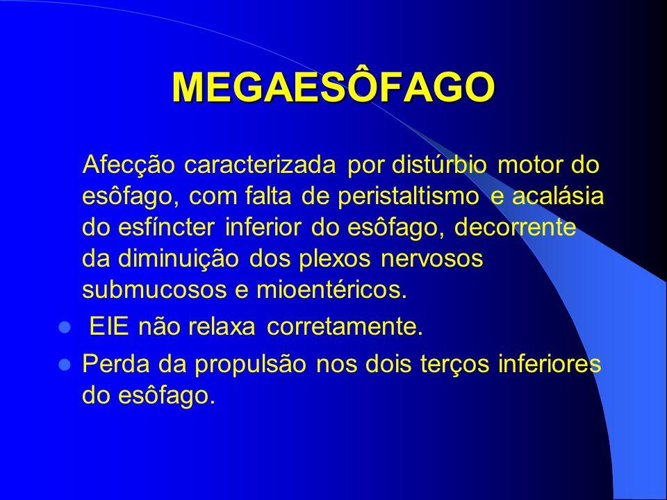 MEGAESÔFAGO Afecção caracterizada por distúrbio motor do esôfago, com falta de peristaltismo e acalásia do esfíncter inferior do esôfago, decorrente d