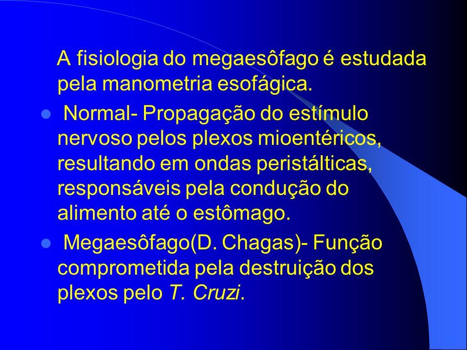 TRATAMENTO CLÍNICO – Farmacoterapia com relaxantes de musculatura lisa(nitratos, bloqueadores de canal de Ca).