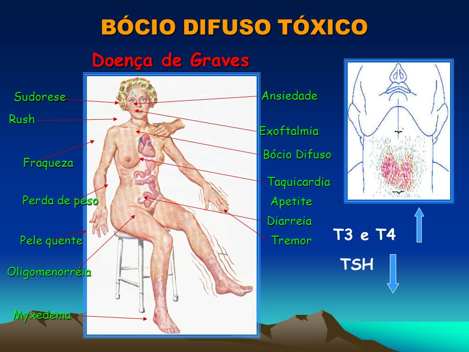 BÓCIO DIFUSO TÓXICO Doença de Graves Ansiedade Exoftalmia Bócio Difuso Taquicardia Apetite Apetite Diarreia Tremor Myxedema Oligomenorréia Oligomenorr