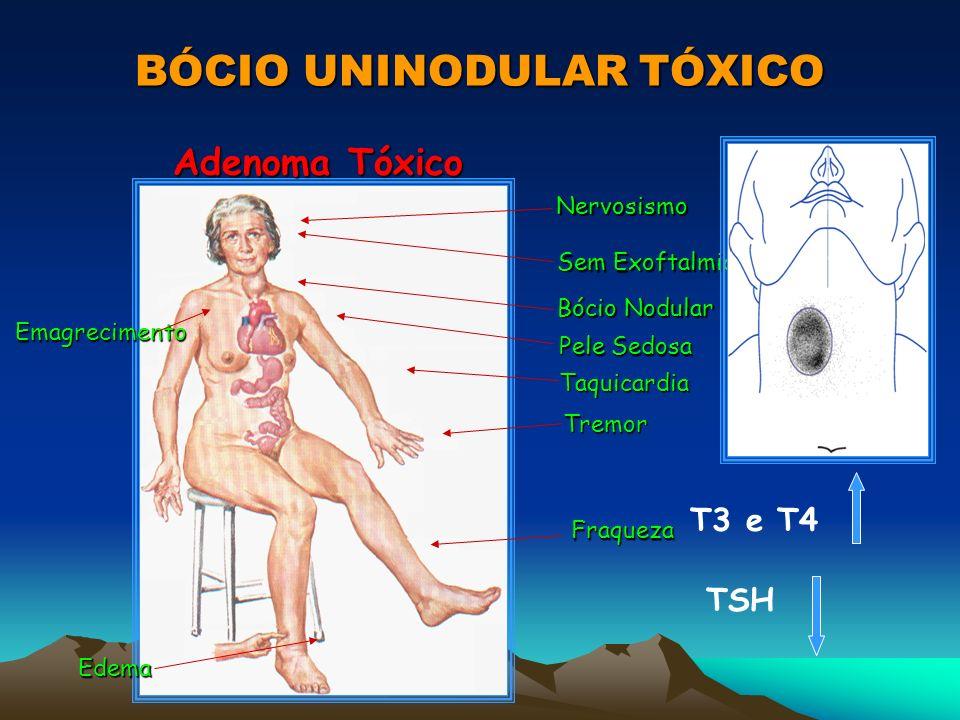 BÓCIO UNINODULAR TÓXICO Adenoma Tóxico Emagrecimento EmagrecimentoNervosismo Sem Exoftalmia Bócio Nodular Pele Sedosa Taquicardia Tremor Fraqueza Edem