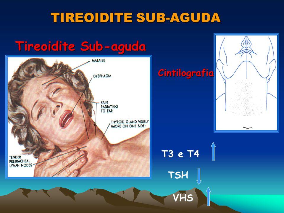 TIREOIDITE SUB-AGUDA Tireoidite Sub-aguda Cintilografia T3 e T4 TSH VHS
