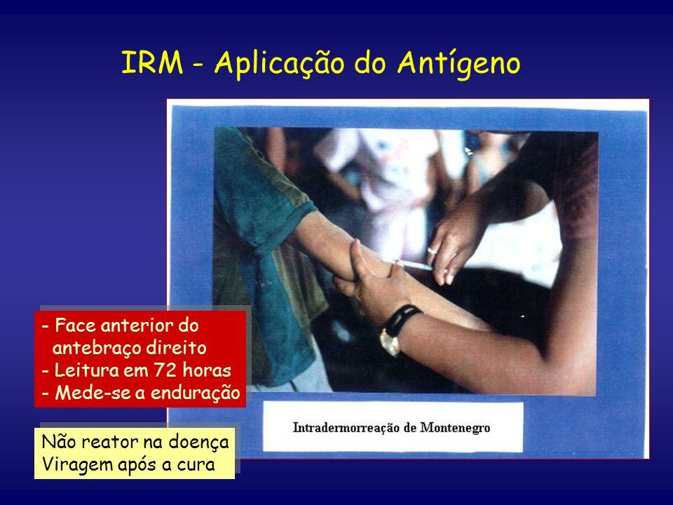 IRM - Aplicação do Antígeno - Face anterior do antebraço direito - Leitura em 72 horas - Mede-se a enduração - Face anterior do antebraço direito - Le
