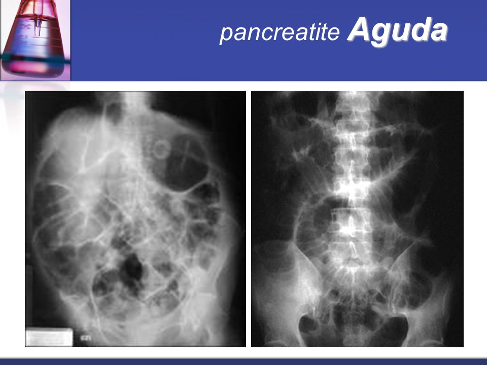 Aguda pancreatite Aguda