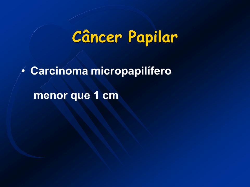 Câncer Papilar Carcinoma micropapilífero menor que 1 cm