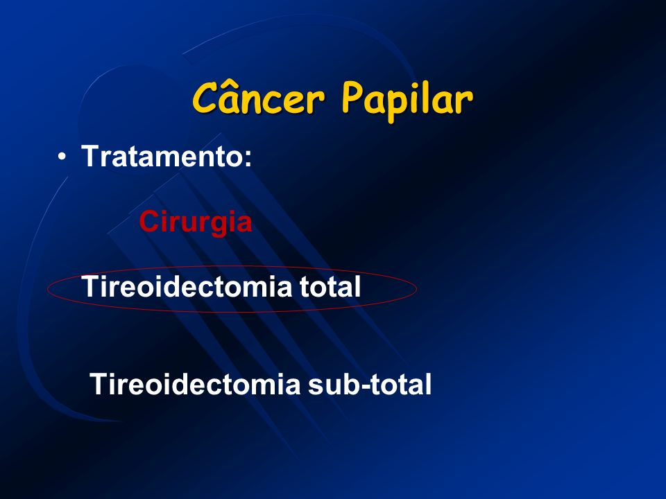 Câncer Papilar Tratamento: Cirurgia Tireoidectomia total Tireoidectomia sub-total