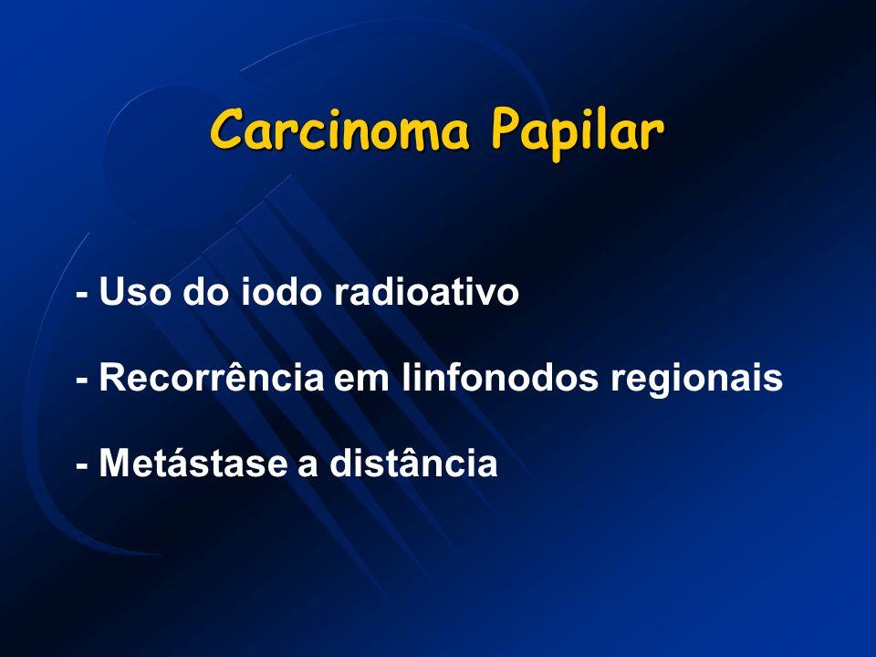 Carcinoma Papilar - Uso do iodo radioativo - Recorrência em linfonodos regionais - Metástase a distância