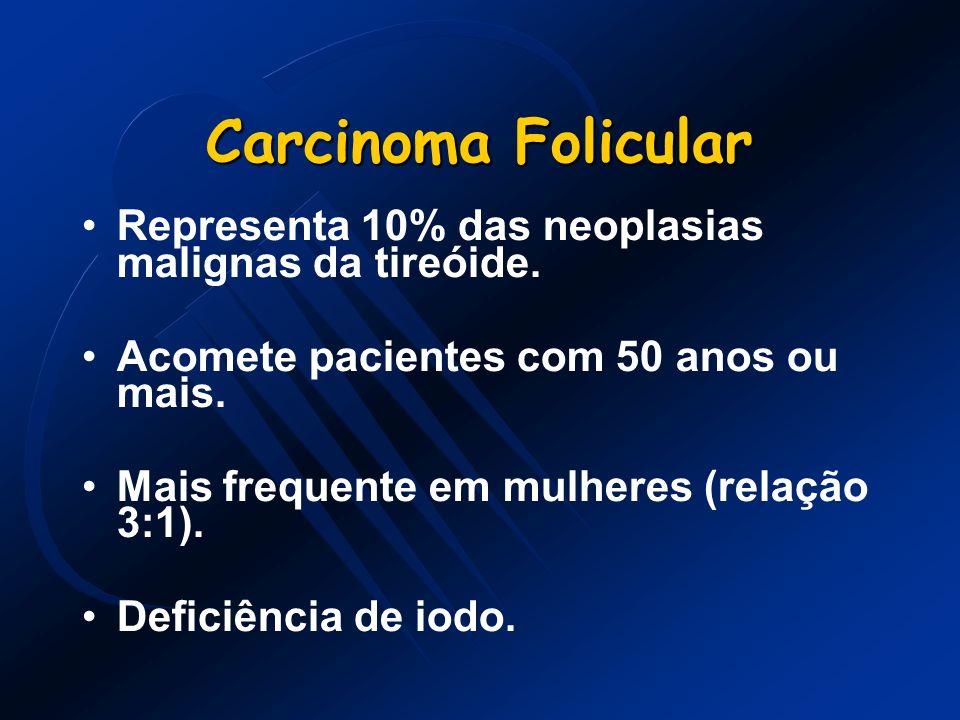 Carcinoma Folicular Representa 10% das neoplasias malignas da tireóide. Acomete pacientes com 50 anos ou mais. Mais frequente em mulheres (relação 3:1