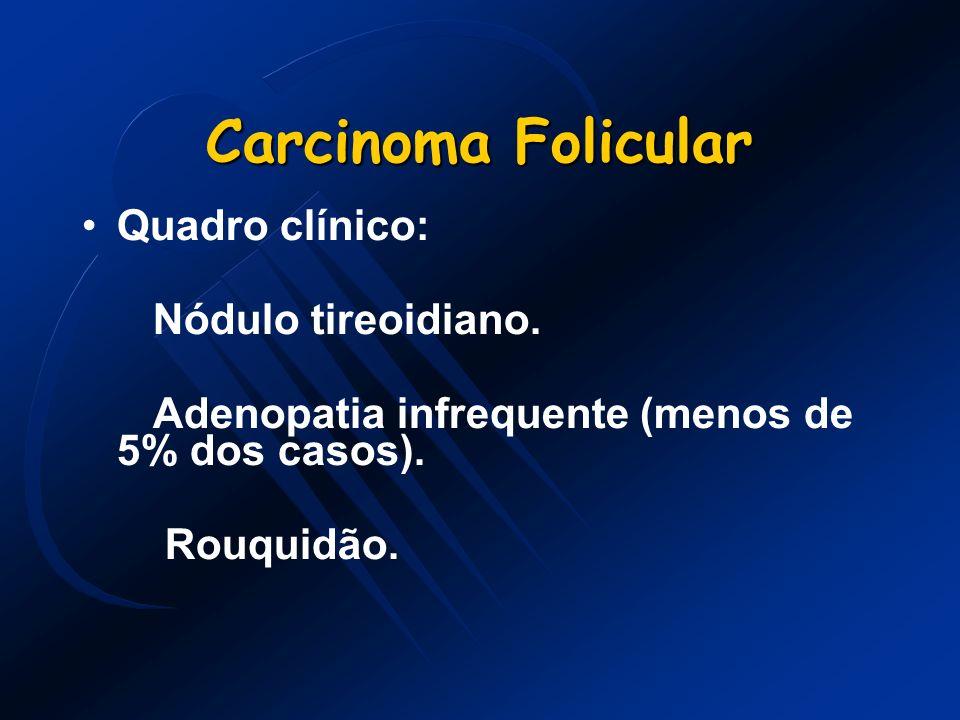 Carcinoma Folicular Quadro clínico: Nódulo tireoidiano. Adenopatia infrequente (menos de 5% dos casos). Rouquidão.