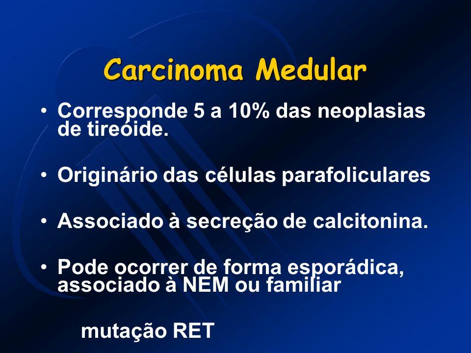 Carcinoma Medular Corresponde 5 a 10% das neoplasias de tireóide. Originário das células parafoliculares Associado à secreção de calcitonina. Pode oco
