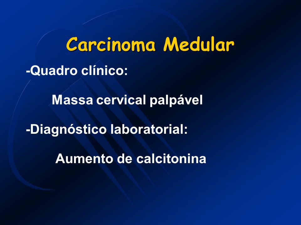 Carcinoma Medular -Quadro clínico: Massa cervical palpável -Diagnóstico laboratorial: Aumento de calcitonina