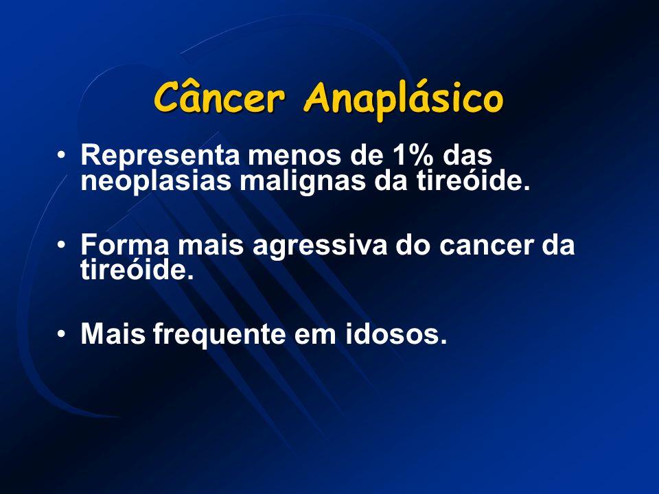 Câncer Anaplásico Representa menos de 1% das neoplasias malignas da tireóide. Forma mais agressiva do cancer da tireóide. Mais frequente em idosos.