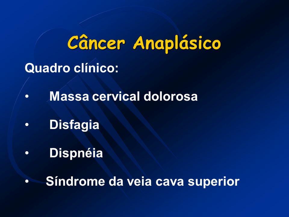 Câncer Anaplásico Quadro clínico: Massa cervical dolorosa Disfagia Dispnéia Síndrome da veia cava superior