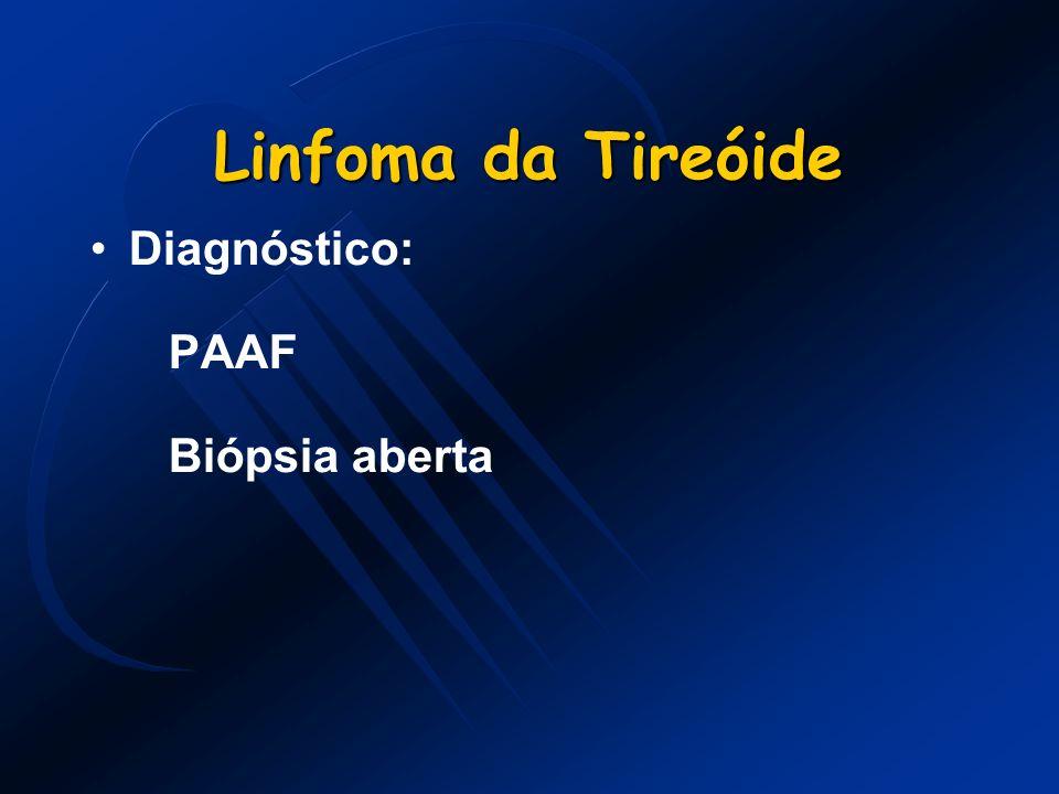 Linfoma da Tireóide Diagnóstico: PAAF Biópsia aberta