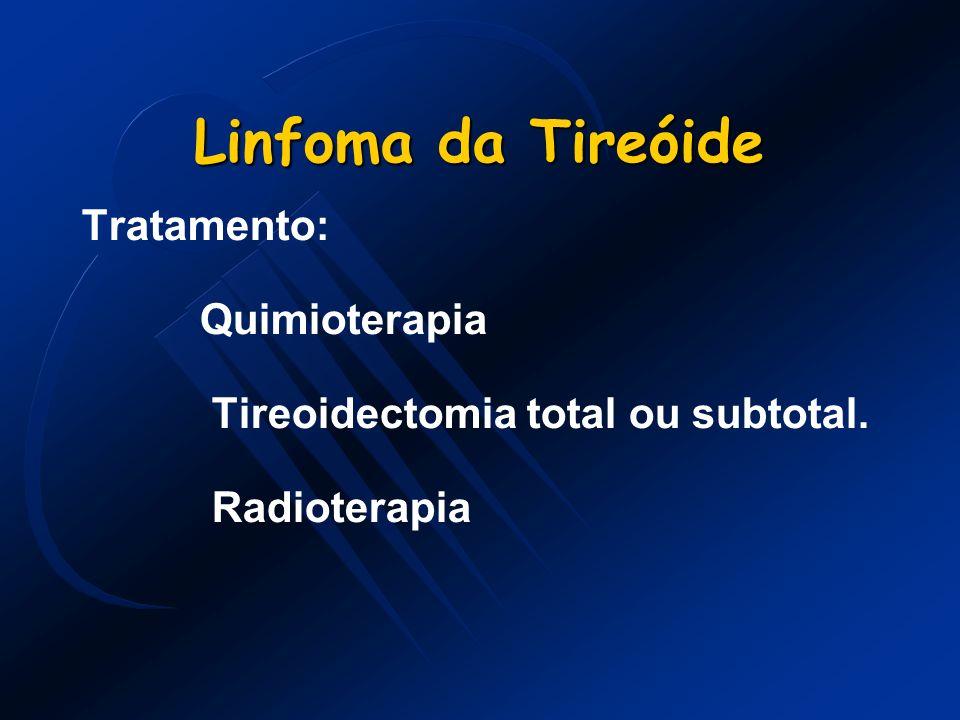 Linfoma da Tireóide Tratamento: Quimioterapia Tireoidectomia total ou subtotal. Radioterapia