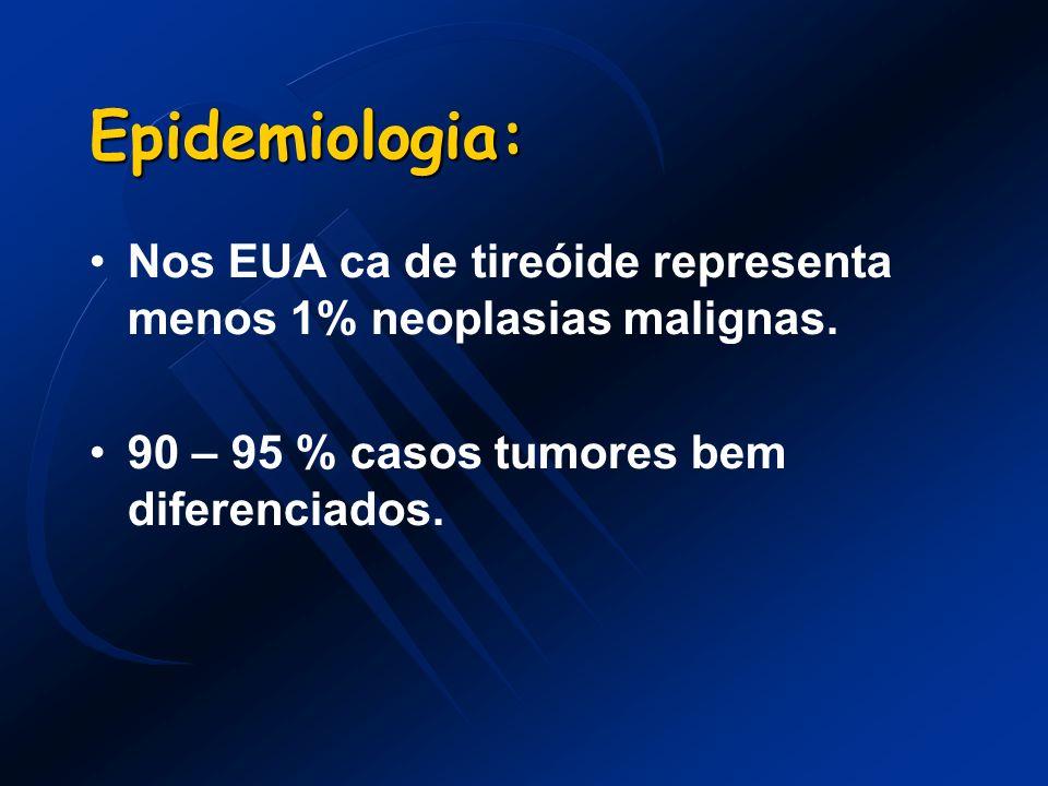 Epidemiologia: Nos EUA ca de tireóide representa menos 1% neoplasias malignas. 90 – 95 % casos tumores bem diferenciados.